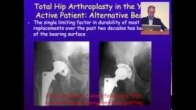 How Much Arthritis Is Too Much, Dr. Kris Alden, Chicago Hip Symposium (2013)