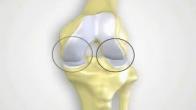 MAKOplasty® Partial Knee Resurfacing Patient Education Video