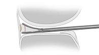 Animation of Ceterix meniscus repair - Justin Saliman MD
