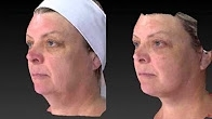 Facelift Necklift Upper and Lower Eyelid Surgery, Fat Grafting - Dr Alex Phoon
