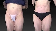 Abdominoplasty Tummy Tuck and Hernia Repair - Dr Alex Phoon