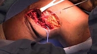 Open Posterolateral Corner Reconstruction