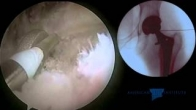 Hip Arthroscopy: Total Hip Replacement - Iliopsoas Tendon Release for Impingement on a Collared Stem