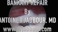 Bankart Repair with Arthrex Suretak