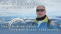 Worlds First Birmingham Hip Resurfacing (BHR) Patient 15 Years On - Mark Edwards