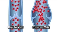 Healthy vs Diseased Vein
