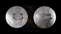 Minimally Invasive Spinal Fusion (TLIF)