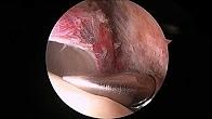 Joshua Harris, MD - Arthroscopic assisted femoral head core decompression for avascular necrosis