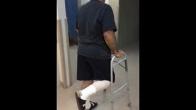 Out Patient Total Joint Replacement; Patient Testimonial - Part 2