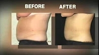 CoolSculpting & Thermage Cosmetic Procedures Covered on Good Morning America w Dr. Jaliman