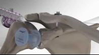 AC Joint Repair with Arthrex� Dog Bone� Button