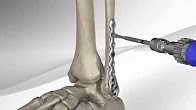 Ankle Fracture Repair with Arthrex� Fracture Management System