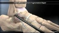 Chronic Ankle Sprain Augmentation Repair with Arthrex� InternalBrace� Ligament Augmentation Repair