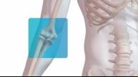 Distal Biceps Repair with Arthrex� Tension Slide