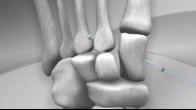 Lisfranc Fracture-Dislocation Repair with Arthrex Mini TightRope