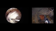 Arthroscopic Superior Capsular Reconstruction