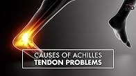 Achilles Tendon Ruputure   Dr. Carr Vineyard   Top10MD