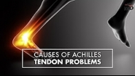 Causes of Achilles Tendon Problems | Dr. Carr Vineyard | Top10MD