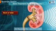 Stent treatment for kidney stones