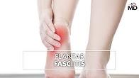 Plantar Fasciitis | Dr. Carr Vineyard | Top10MD
