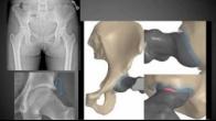 Femoro Acetabular Impingement (FAI) Clinic