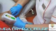 Mira Dry Procedure