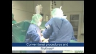 MyKnee Custom Knee Replacement