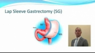 Metabolic & Bariatric Surgery: An Update - Joseph E. Chebli