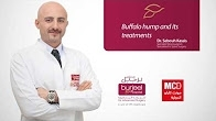 Buffalo hump and its treatments by Dr. Sebouh Kassis/Monte Carlo Radio