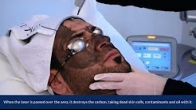 Carbon Laser Peel Therapy