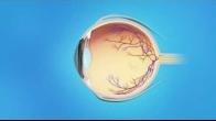 Retina Wet AMD Medication Injection