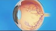 Retina Diabetic PDR Vitrectomy