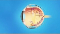 Retina Detached Scleral Buckle