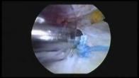 Rotator Cuff Repair - JOI - Kevin M. Kaplan, MD