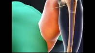 Leg Lengthening Procedure
