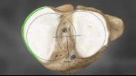 Custom Total Knee Replacement/Resurfacing by Conformis