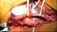 Subcutaneous Ulnar Nerve Transposition - Video 3