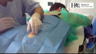 Pudendal Nerve Block procedure - Harley Pelvic Care Center