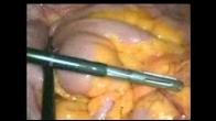 Laparoscopic Appendicectomy Operative video
