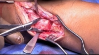 Lateral Talar Dome Osteochondral Allograft Transplantation via Fibular Osteotomy