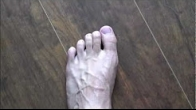 Foot Pain, Top of Foot Pain, Self Diagnose Foot Pain, Ball of Foot Pain, Metatarsal Pain