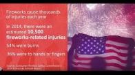 Dr. Beldner discusses firework safety for July 4th celebrations
