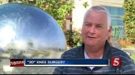 3D Printing Helping Knee-Replacement Patients