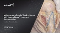 Midsubstance Patella Tendon Repair with InternalBrace� Ligament Augmentation
