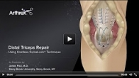 Distal Triceps Repair Using Knotless SwiveLock�