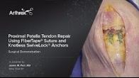 Proximal Patella Tendon Repair Using FiberTape� Suture and Knotless SwiveLock� Anchors