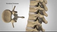 Patient Education Myelopathy US