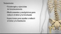 Patient Education Adult Degenerative Scoliosis Spanish US