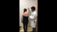 Pectoralis Major Transfer for Scapular Winging by Dr Xinning Li