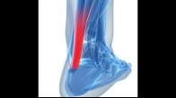PRP Treatment For Achilles Tendinitis in NY